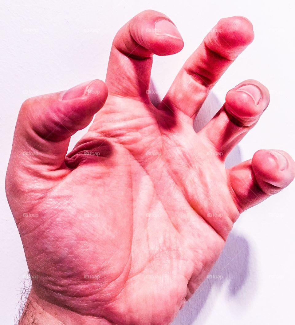 Hand clenching.