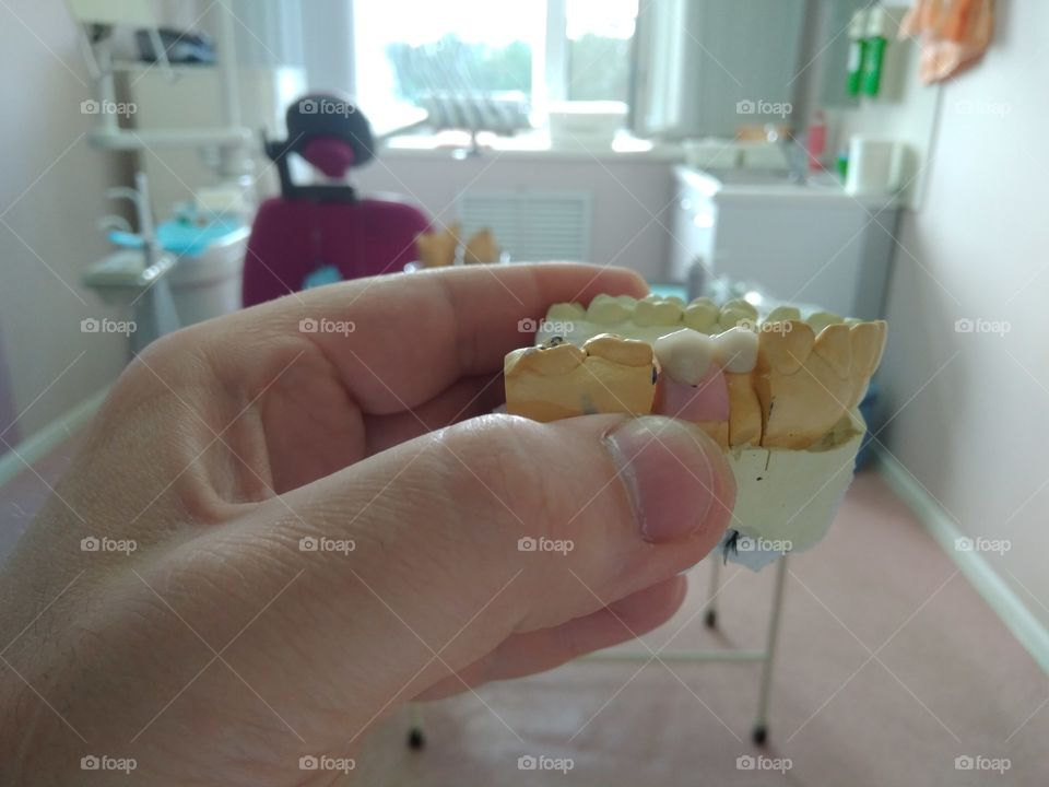 Dental crown on implantant