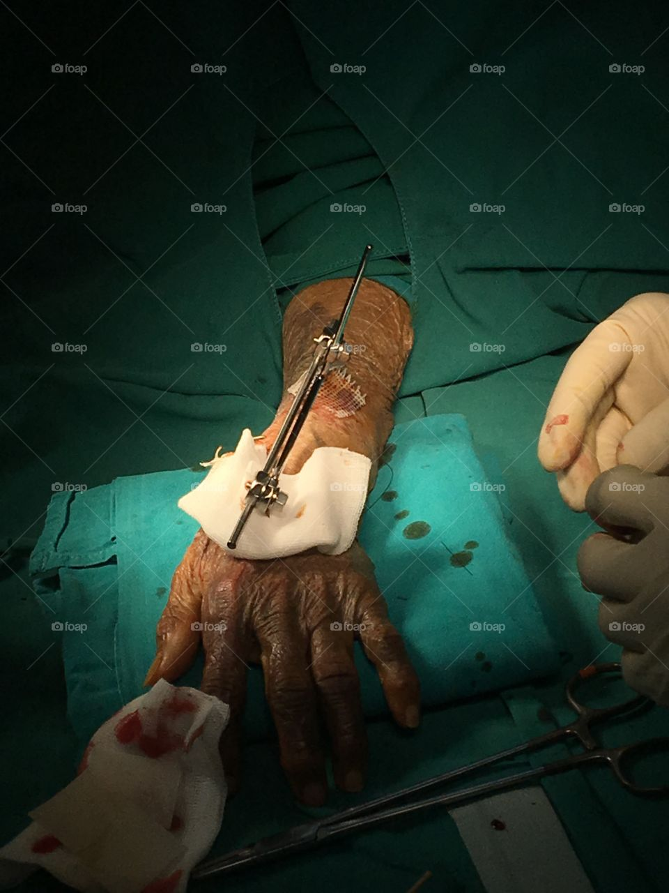 Person's burnt hand in operation theater